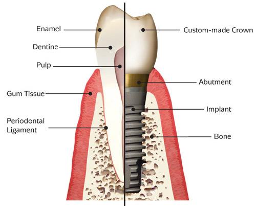 , Implants