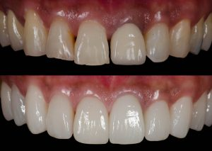 , Smile Makeover – what is included and what can be achieved?