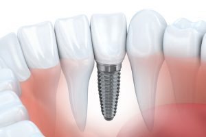 , Do you have missing teeth? Dental implants could be the solution.